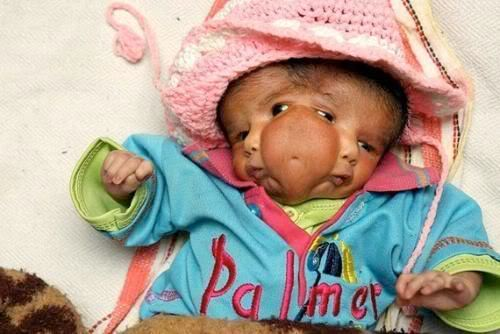 A Baby Born with Two Faces